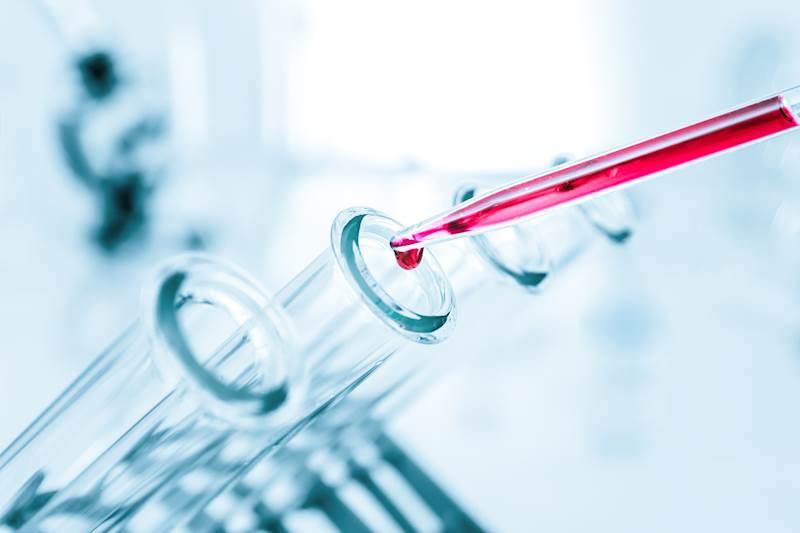 Badanie fizykochemiczne z przyjazdem próbobiorcy