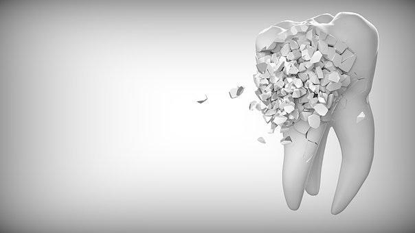 tooth-2874551__340.jpg